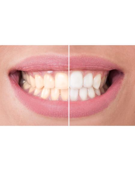 Mit Hausmitteln gegen Zahnverfärbungen   Zahnboutique - Dr